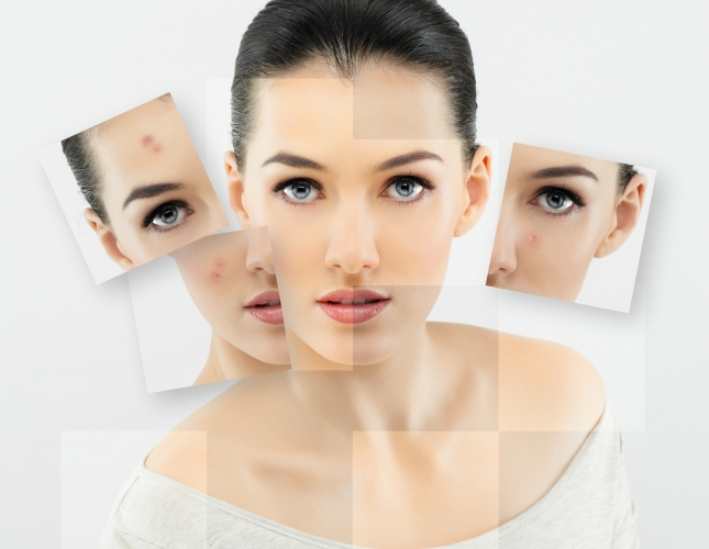 acne-break2