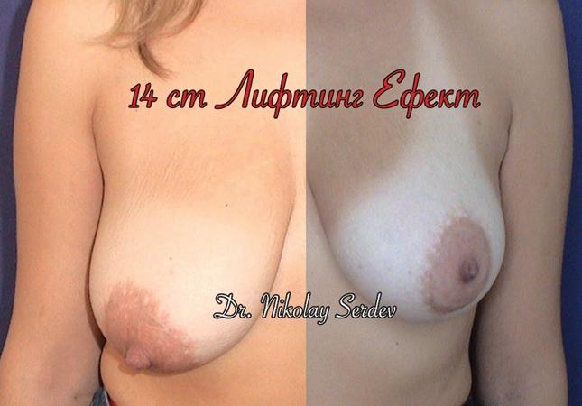 Д-р Сердев - МЦ Естетична Хирургия, Естетична Медицина-1