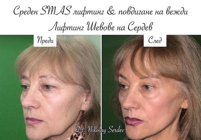 Д-р Сердев - МЦ Естетична Хирургия, Естетична Медицина-5