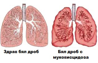 kistozna_fibroza_s_belodrobni_proqvi