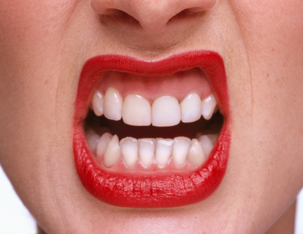 0719-beauty-fixes-01-how-to-get-red-lipstick-off-teeth_li