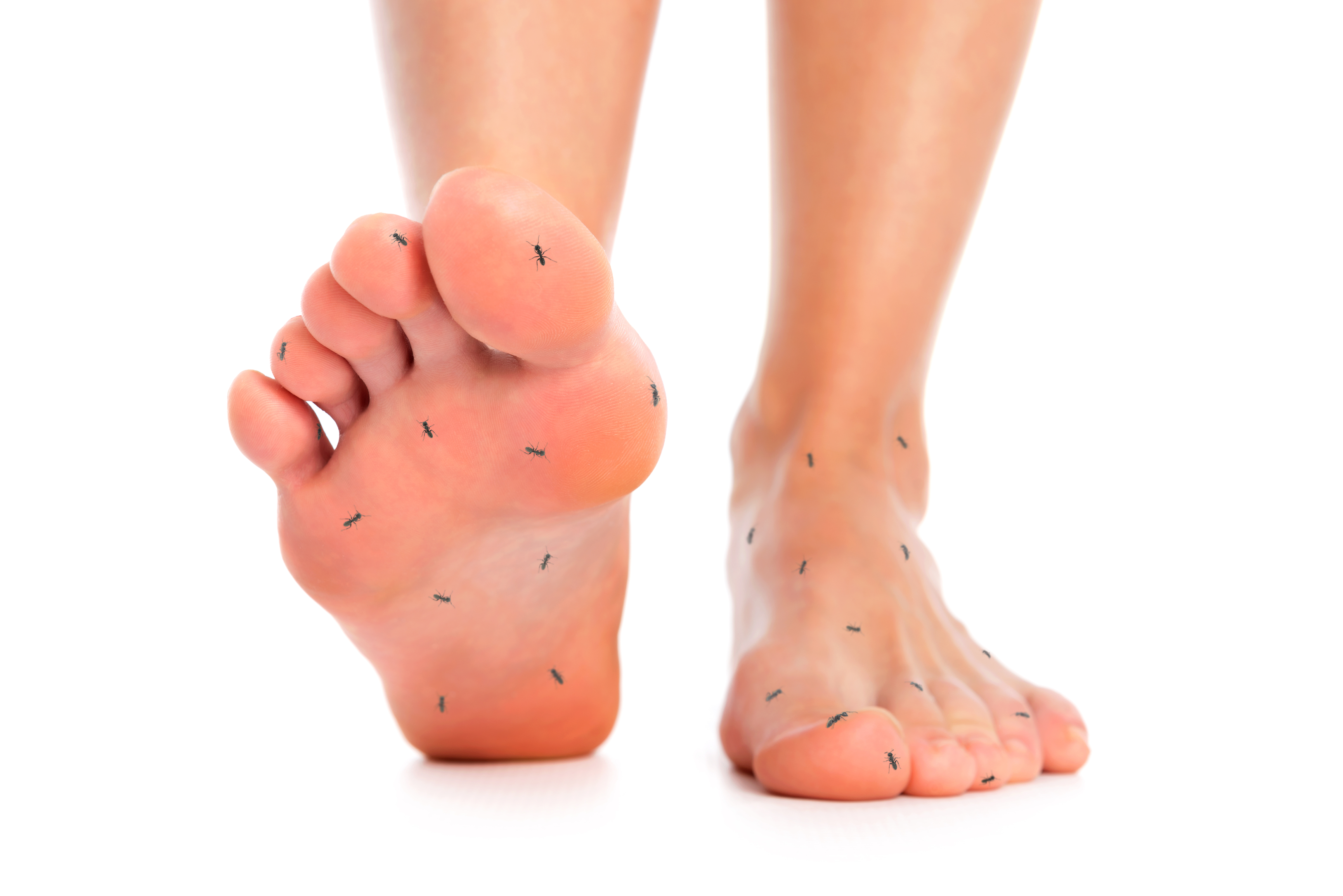 http://www.dreamstime.com/royalty-free-stock-images-numb-limbs-feet-ants-symbolizing-numbness-over-isolated-background-image60370109